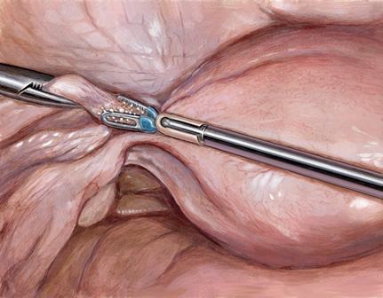 Sealing the round ligament fallopian tube and ovarian ligament in